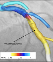 Computer reconstruction of an artery